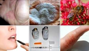 аллергены (1)