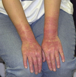 аллергия на латекс1