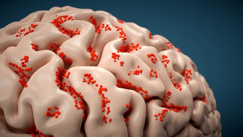 Мозг инфицирован энцефалитом